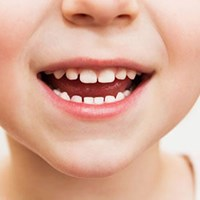 Children's Dental Crowns