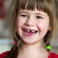 Pediatric Dental Extractions